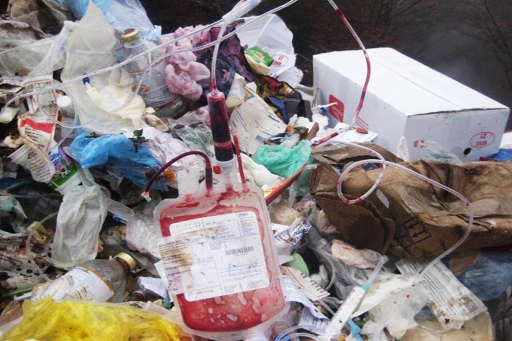 Медицинские отходы и их классификация по классам опасности
